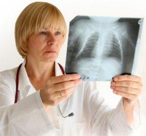 Як швидко вилікувати кашель в домашніх умовах, ефективні народні засоби