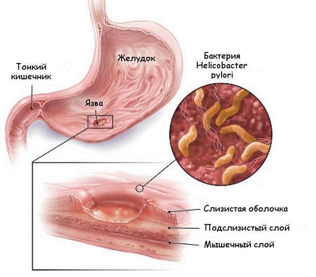 Лікування виразки шлунка народними засобами